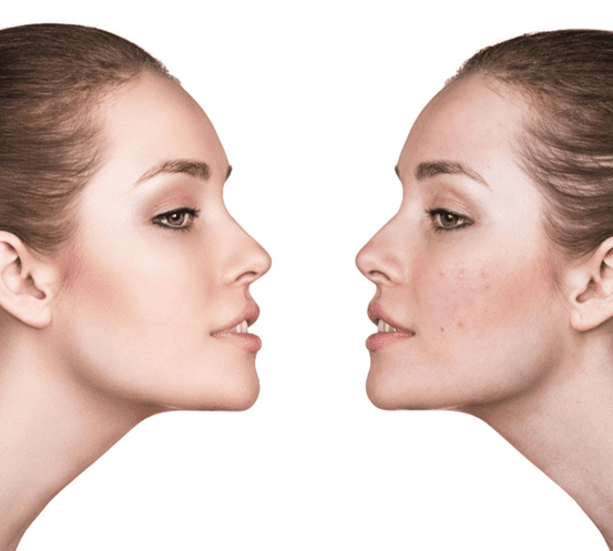 Get rid of acne permanently. Eliminate from root
