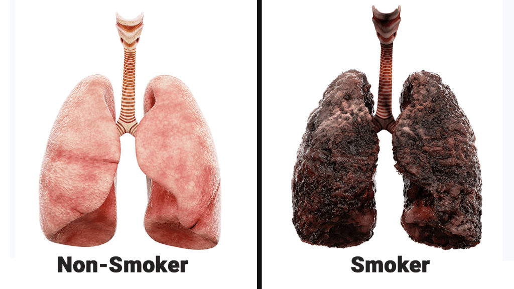 Hydrogen to help in treatment of lung diseases